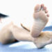 Best Natural Remedies For Bunions – Manage, And Prevent Bunions